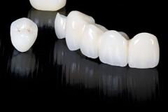 SP-clinica-dental-corona